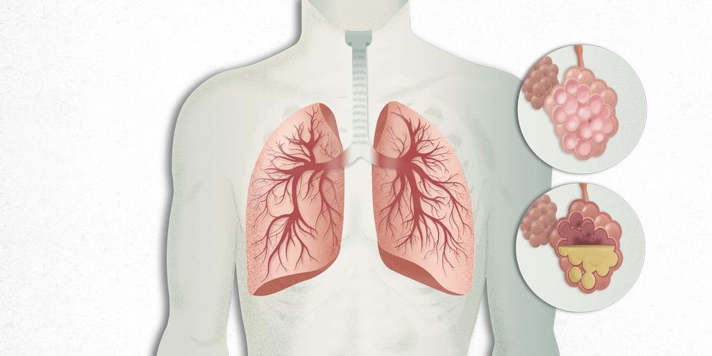 Pneumonia symptoms, reasons and treatment