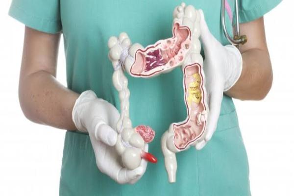 क्या होता है कोलन कैंसर? जानें कारण, लक्षण और उपचार